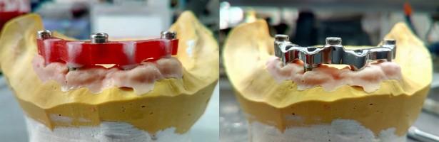 image -¿Qué hace un laboratorio dental?